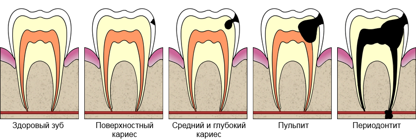 Cavities_evolution