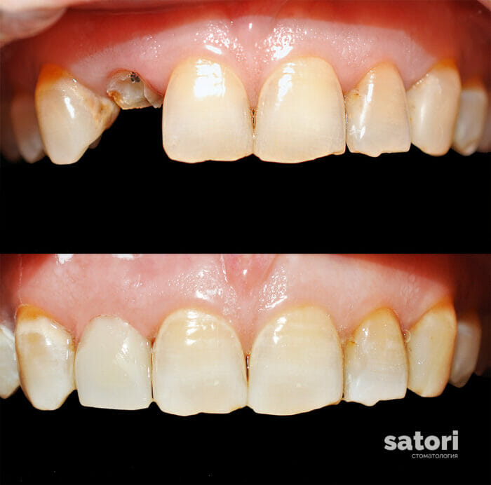 стоматология самара