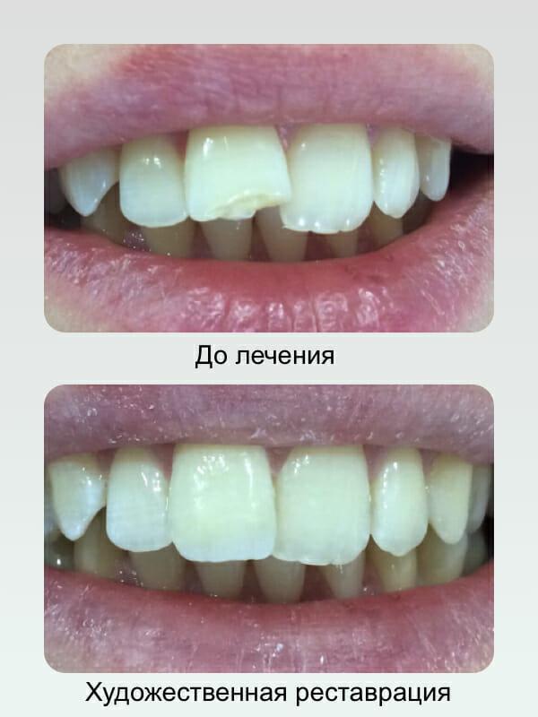 Художественная реставрация зубов, лечение зубов в Самарев