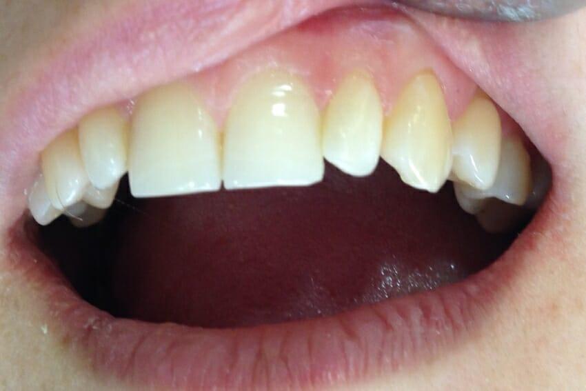 Лечение зубов в Самаре, вылечить зуб в Самаре
