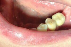 Имплантация зубов в Самаре установлена коронка