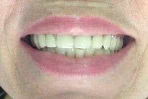 Протезирование зубов в Самаре металлокерамическими коронками.