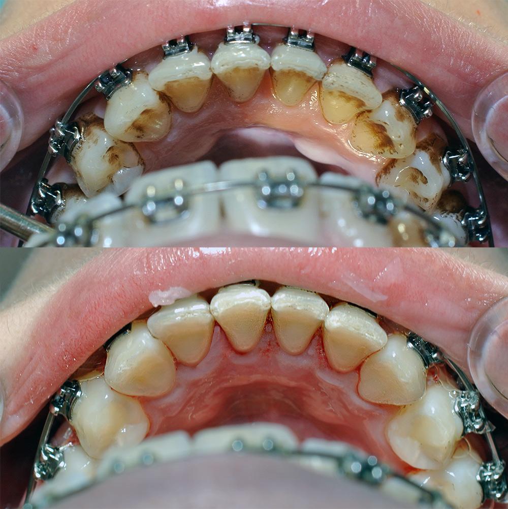 professionalnaya-chistka-zubov-front