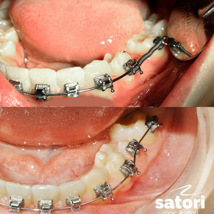 стоматология самара, стоматолог самара, стоматология в самаре