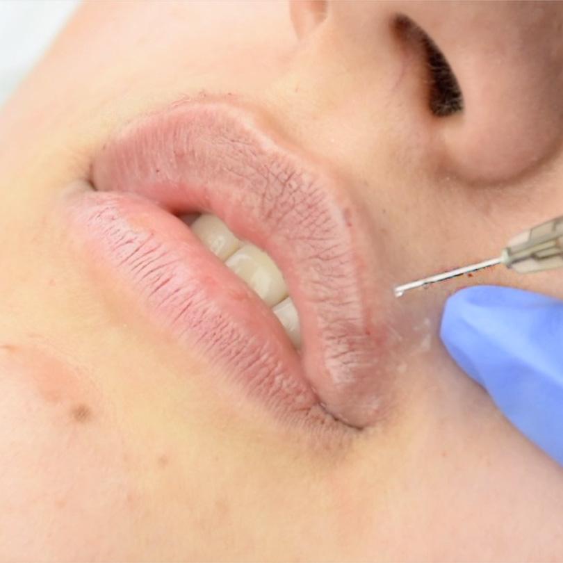 Скидка 20% на изменение формы губ