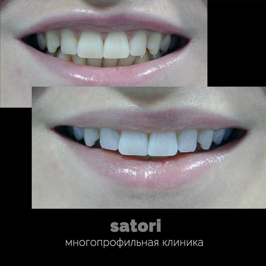 Скидка 15% на отбеливание зубов