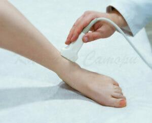 УЗИ сосудов, узи сосудов нижних конечностей, узи сосудов ног