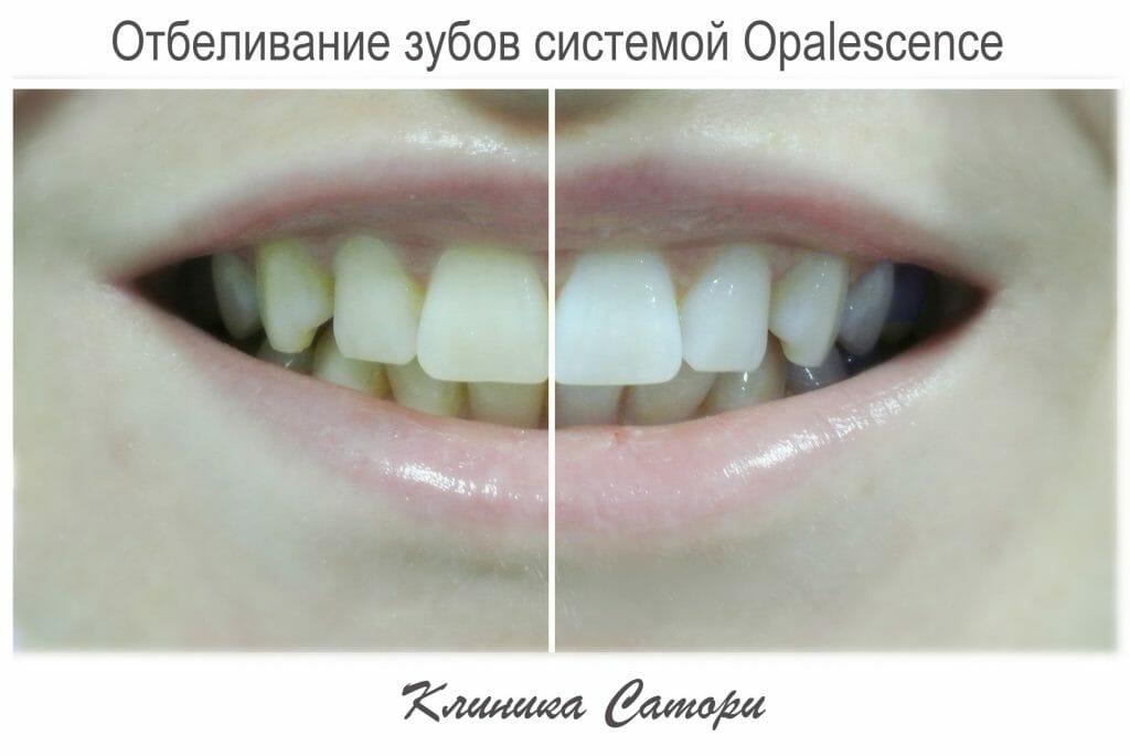 Скидка 10% на отбеливание зубов
