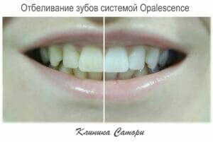 отбеливание зубов, отбеливание зубов в Самаре, отбеливание зубов самара