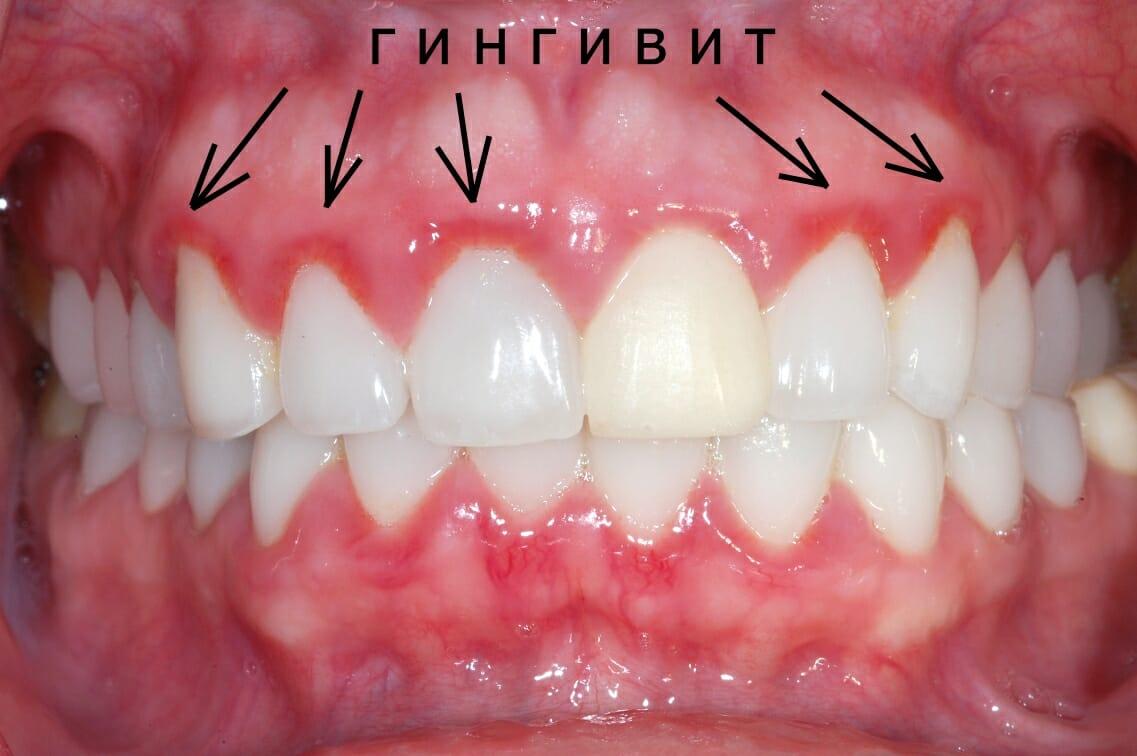 Как лечить воспаление зубов в домашних условиях 22