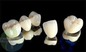 Металлокерамическая коронка на зуб Самара
