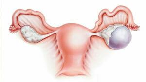 Киста яичника, киста яичника симптомы лечение в Самаре