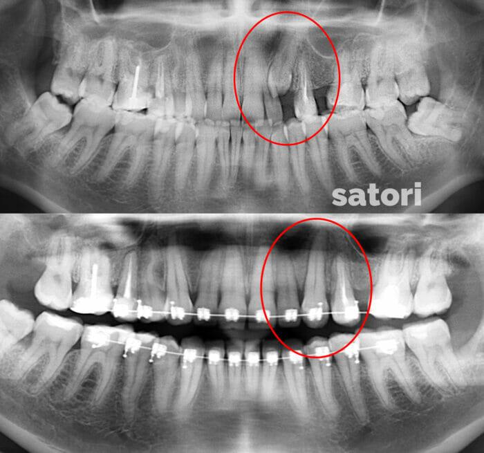 ретинированный зуб до и после