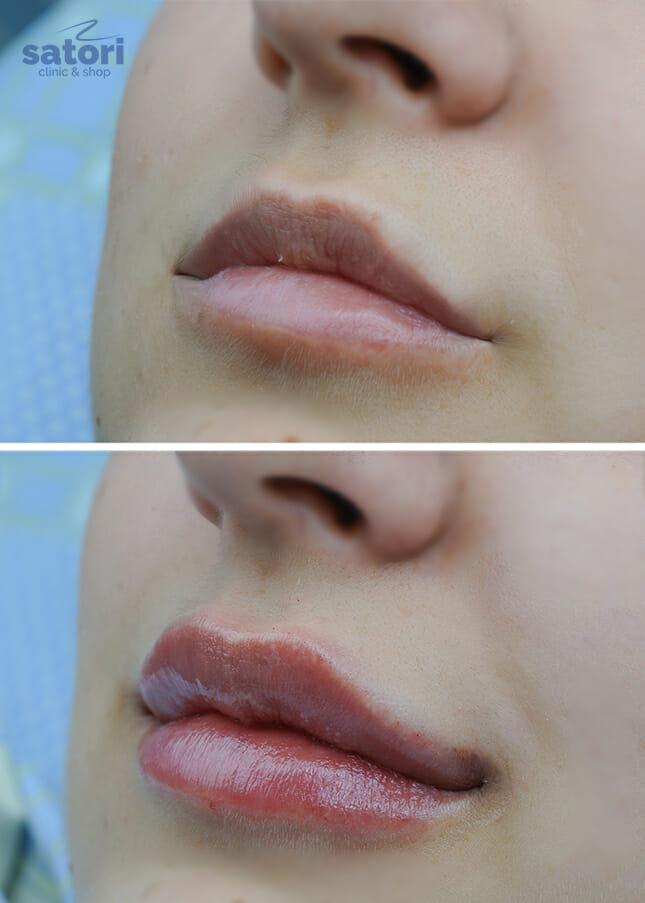 Скидка 20% на увеличение губ и коррекцию носогубных складок!