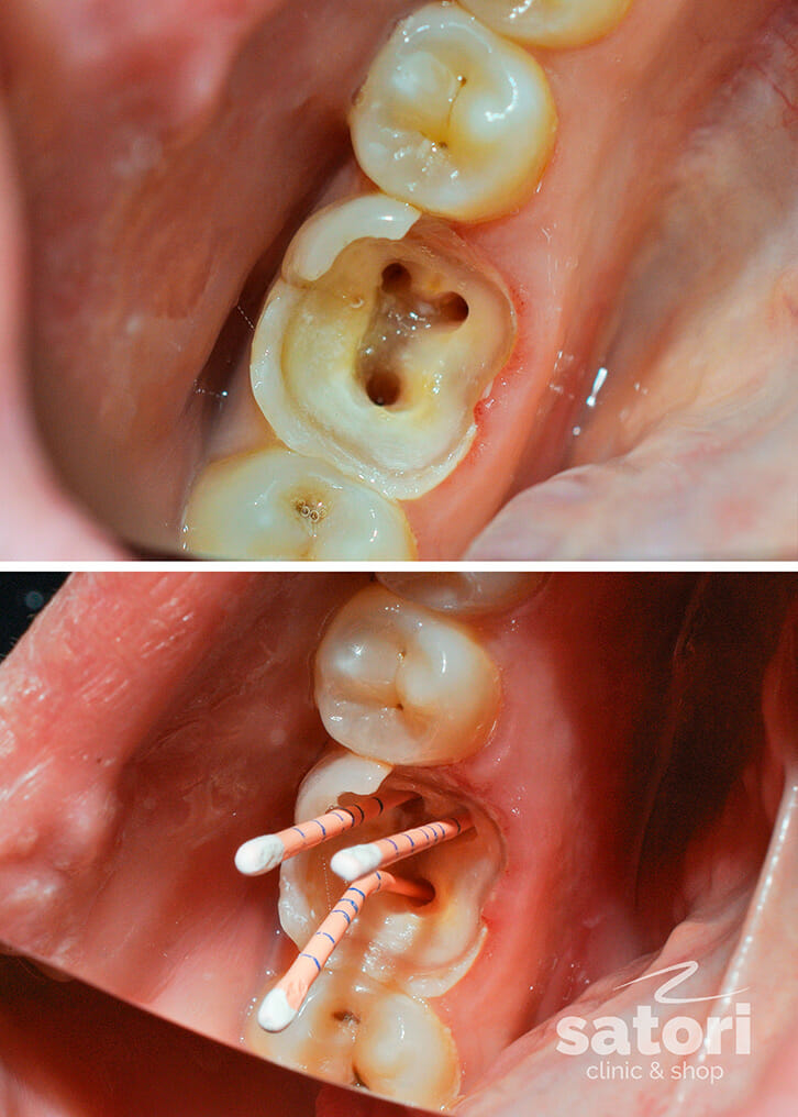 пульпит, стоматология самара, стоматология, стоматология в самаре, лечение пульпита в самаре