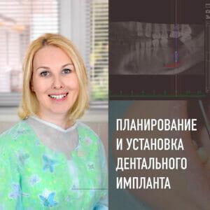 имплантация, установка дентального импланта