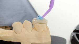 керамическая вкладка на зуб Самара