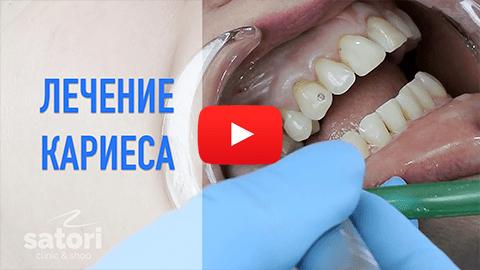 стоматология самара, лечение кариеса самара, стоматология, стоматология в самаре