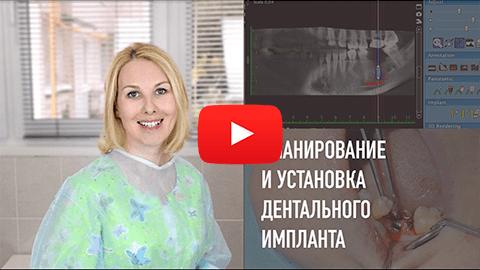 стоматология в самаре, имплантация зубов самар, имплантация самара, стоматология самар, стоматология